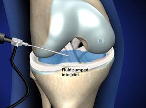 Omaha Arthroscopic Chondroplasty