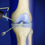 omaha knee arthroscopy