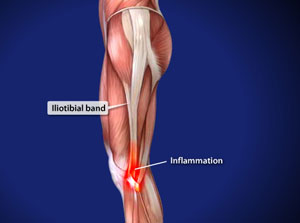 omaha iliotibial band syndrome