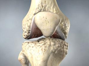 omaha knee arthritis