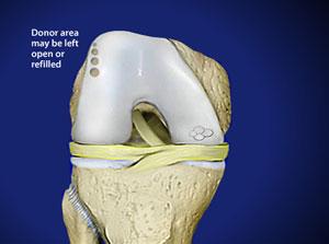 OATS Cartilage Repair Surgery