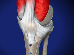 Omaha Tibial Tubercle Osteotomy