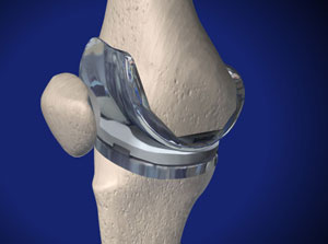 hastings total knee replacement