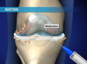 Visco supplementation for Arthritis