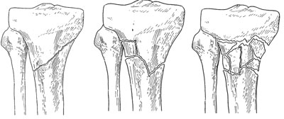 proximal tibia fractures